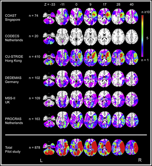 Kwetsbaarheid hersenen
