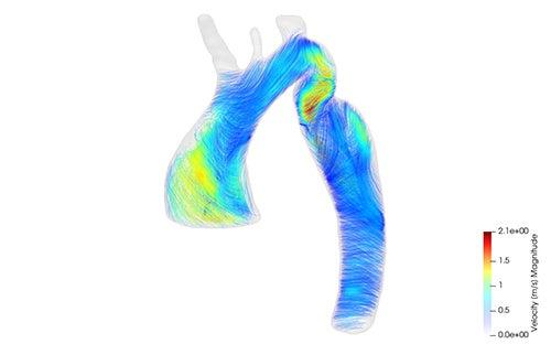 Je ziet de aorta van een patiënt. De lijnen en kleuren geven de stroomrichting en de stroomsnelheid van het bloed tijdens één hartslag.