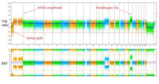 Voorbeeld van een SNP-array analyse van een neuroblastoom met verlies van chromosoom 1p36, amplificatie van MYCN en gedeeltelijke verhoging van chromosoom 17q.
