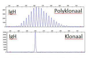 Voorbeeld van een B-cel klonaliteitsanalyse.