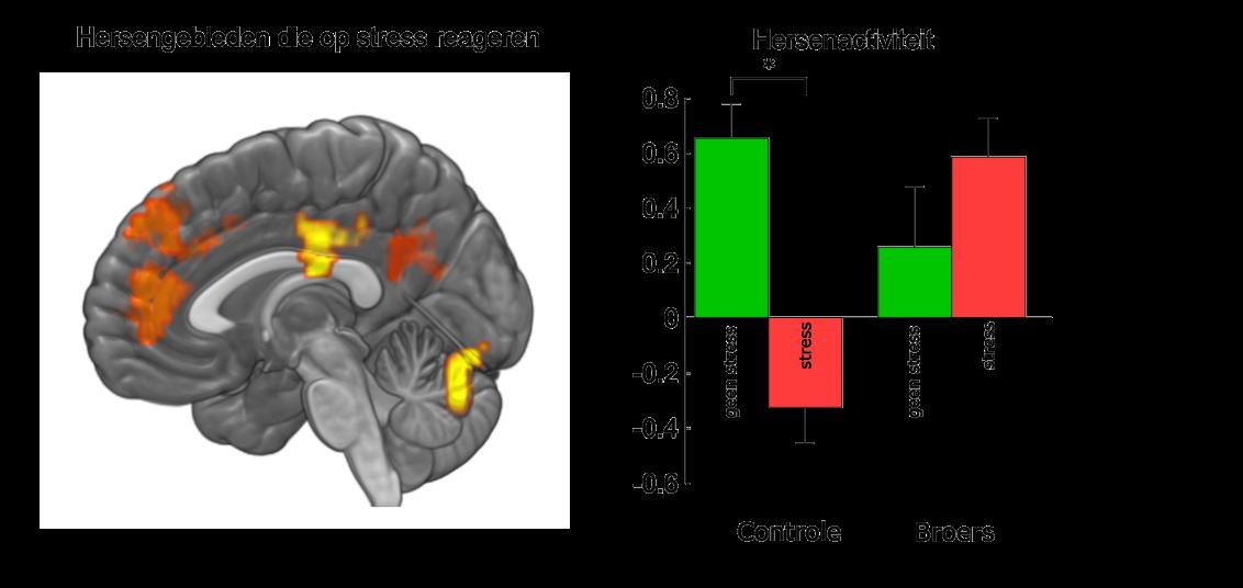 Resultaten MRI: effecten van stress