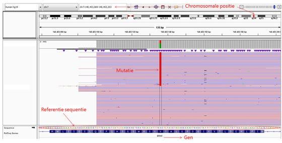 behandeling van het melanoom met tyrosine kinase remmers (TKI's).