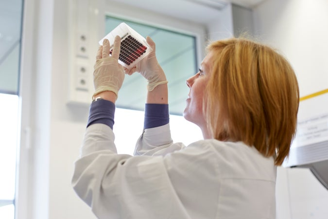 In the DKMS Life Science Lab, an employee checks a prepared blood sample panel for the correct fill level.